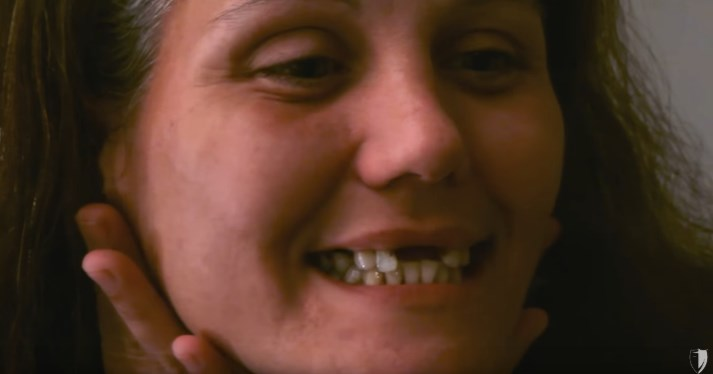Victim Of Domestic Violence Lost House And Front Teeth. But She Is Unrecognizable Now, After The Complete Makeover