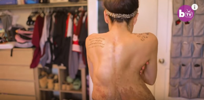 Her Body Is Covered With Tumors, But She Accepts Her Look To Help Her Son With The Same Condition