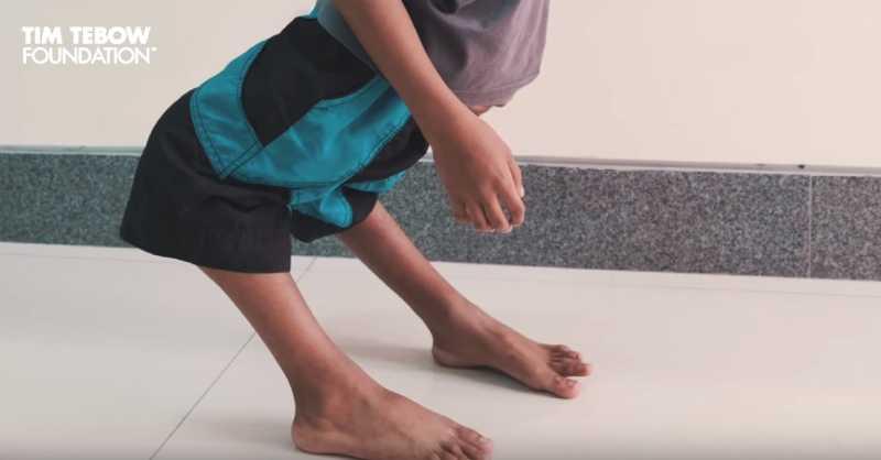 Su rodillas se doblaban hacia el lado contrario, y solo tomó 4 horas de cirugía para voltearlas
