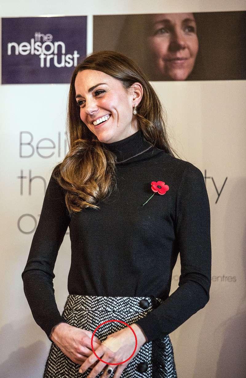 Kate Middleton siempre lleva curitas por heridas en sus manos y varias teorías podrían explicarlo