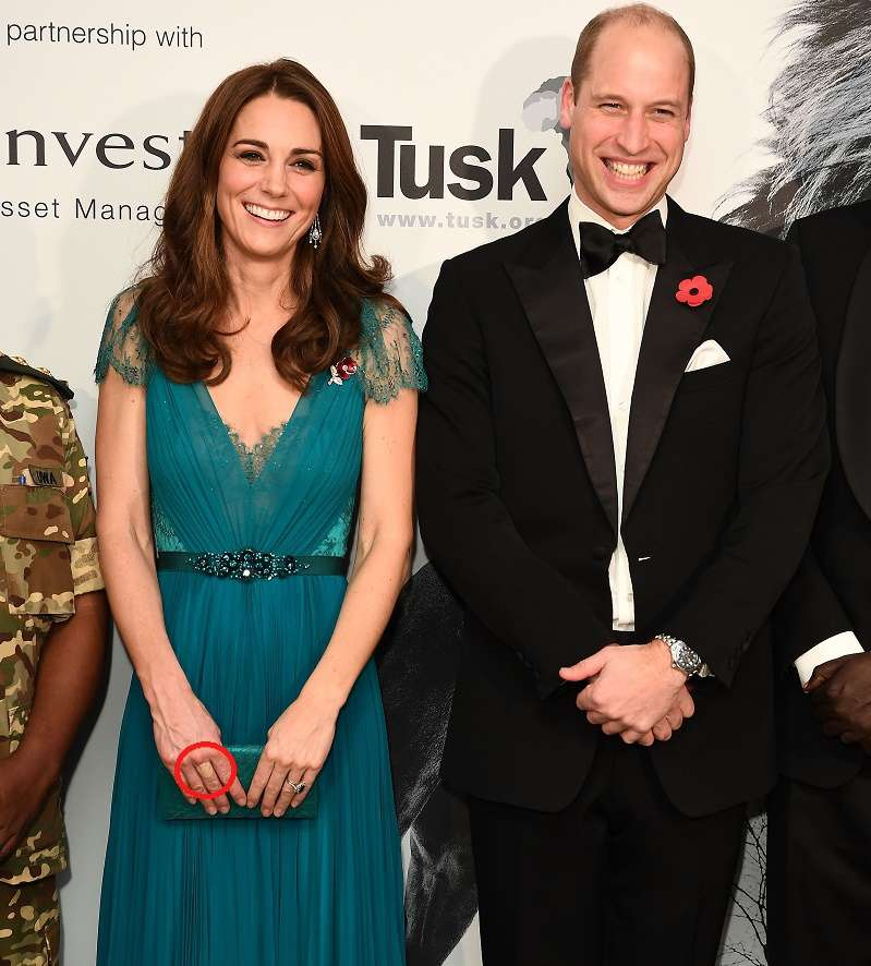 Why Kate Middleton Often Appears In Public With Skin-Color Band-Aids On Her Hands