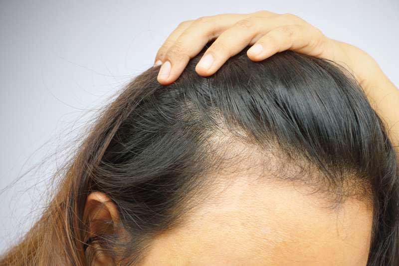 Qu'est-ce que la calvitie chez les femmes, quelles sont ses causes et comment l'éviter ?