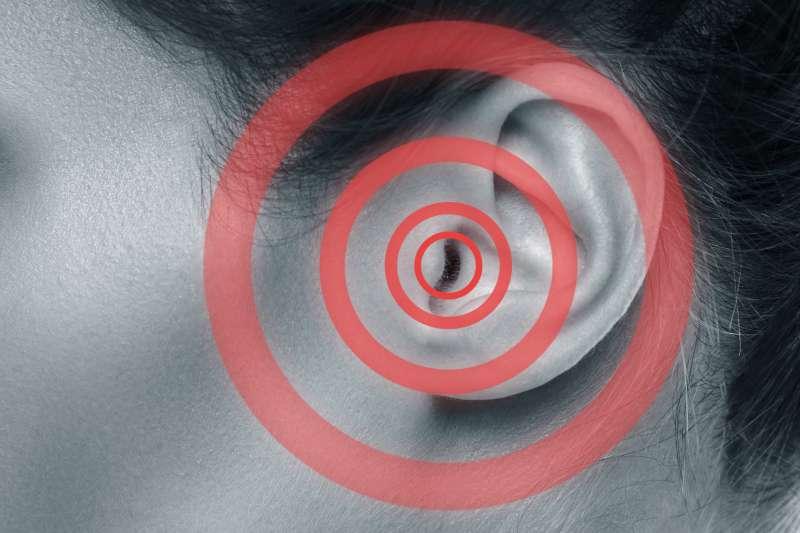 Aunque no sea doloroso, un zumbido en los oídos podría ser un síntoma de cáncer en la nasofaringe