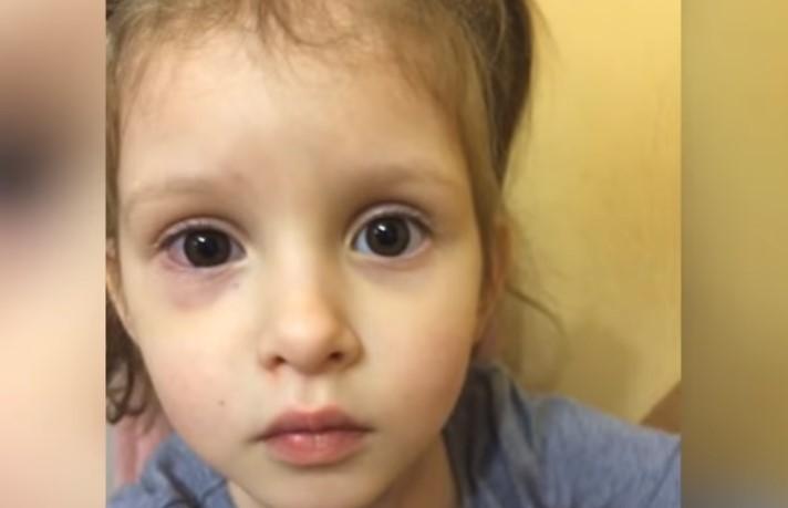 Une fille de 3 ans a failli perdre un œil au jardin d'enfants parce que la surveillante n'était pas là