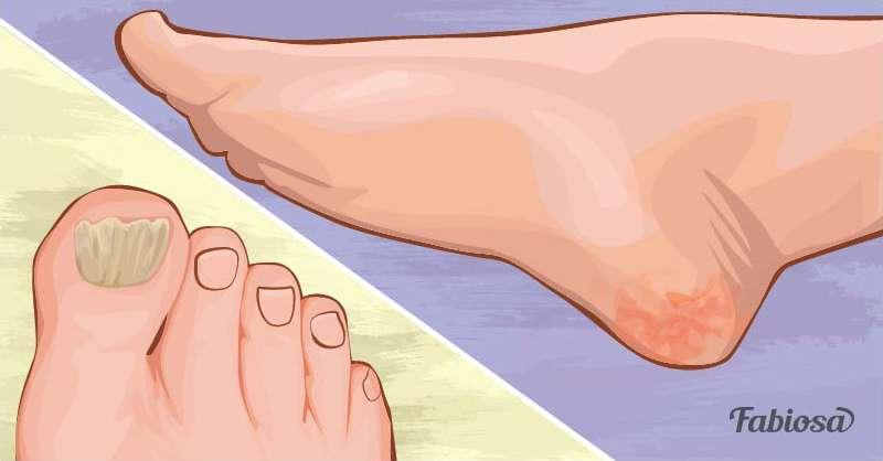 e395069f4d0f Avec de tels pieds, avec des talons craquelés et une peau qui colle, il est  souvent impossible de porter de belles sandales ou de marcher  tranquillement le ...