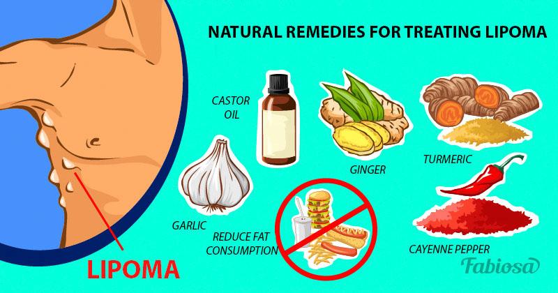 How To Treat Lipoma Naturally