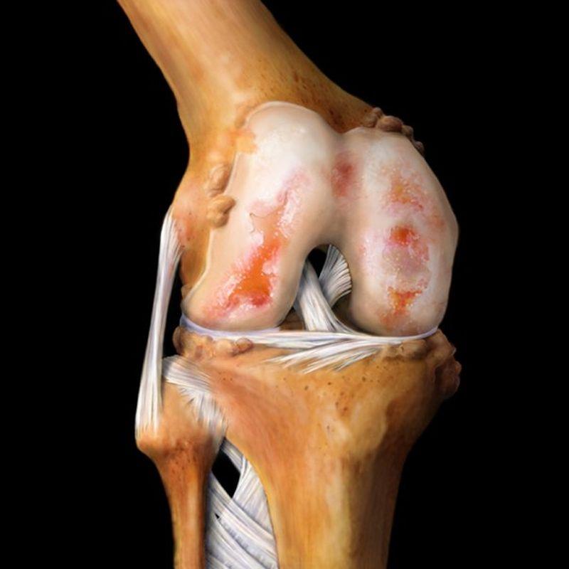 Колено человека анатомия фото
