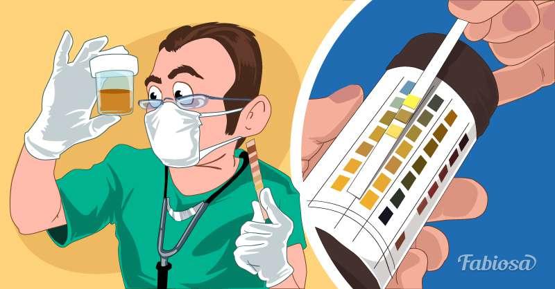 О заболевании почек свидетельствует появление в моче