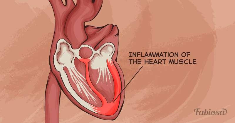 prevenir la miocarditis