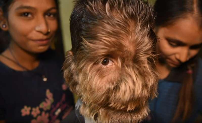 Ce garçon de 13 ans a le visage entièrement couvert de fourrure à cause d'un rare syndrome