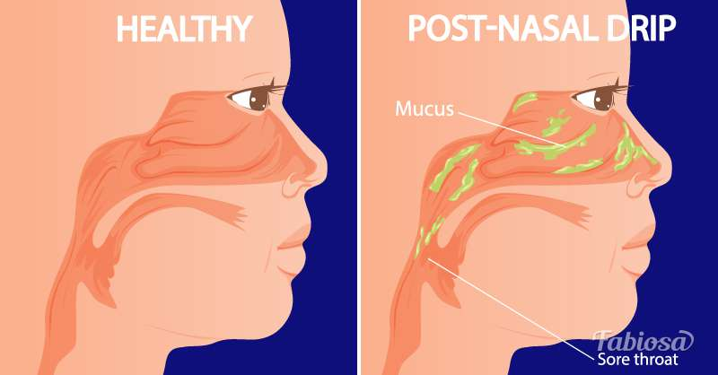 How To Relieve Postnasal Drip Without Nasal Sprays: 5