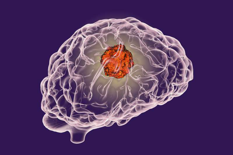 Frau glaubte, ihre schrecklichen Kopfschmerzen kämen von einem Hangover, doch es stellte sich heraus, dass es ein furchtbarer Tumor war