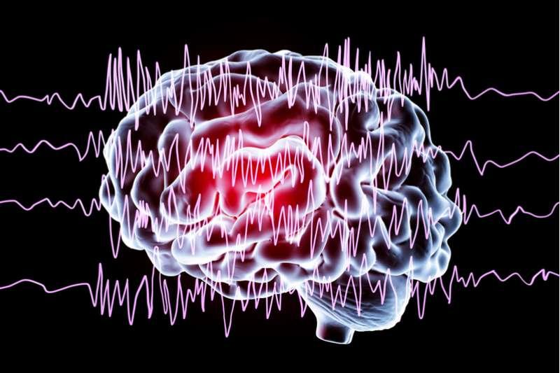 Что такое «тихий» инсульт и почему он еще опаснее «явного»?Что такое «тихий» инсульт и почему он еще опаснее «явного»?Что такое «тихий» инсульт и почему он еще опаснее «явного»?Что такое «тихий» инсульт и почему он еще опаснее «явного»?Что такое «тихий» инсульт и почему он еще опаснее «явного»?Что такое «тихий» инсульт и почему он еще опаснее «явного»?