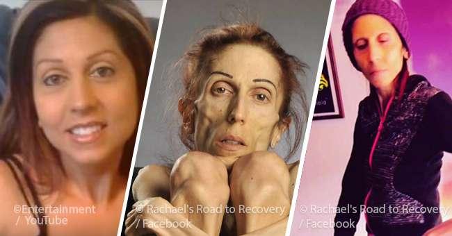 Frau welt dünnste der Anorexia Nervosa:
