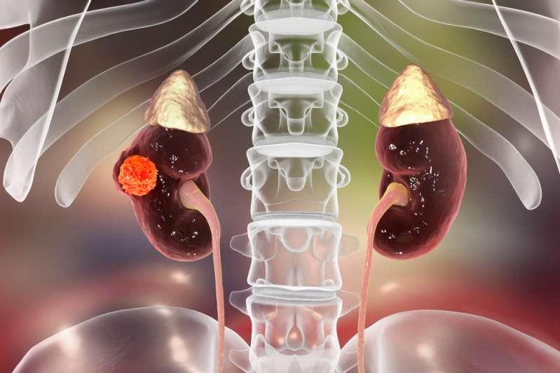 8 Krebsarten, die frühzeitig äußerst schwer zu erkennen sind