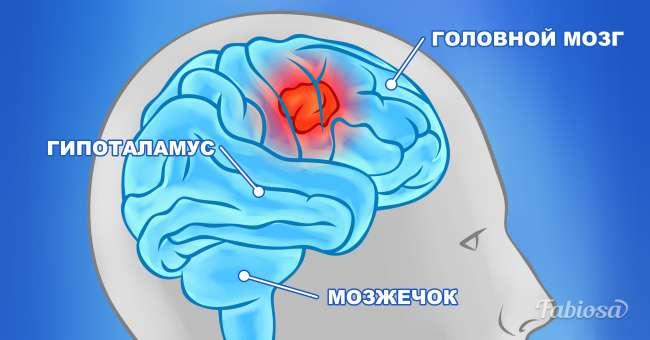 Симптомы рака мозга, о которых важно знать