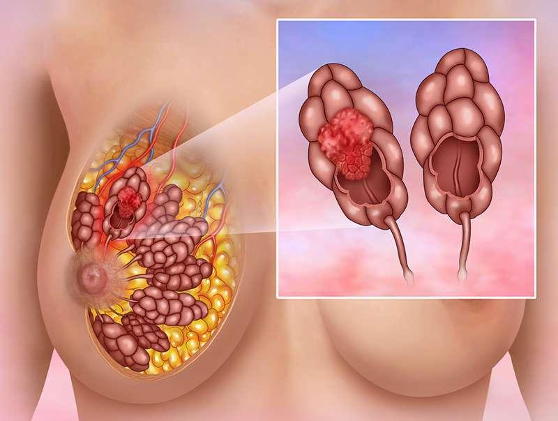 44-летней женщине диагностировали рак груди, о котором долгое время свидетельствовал необычный симптом