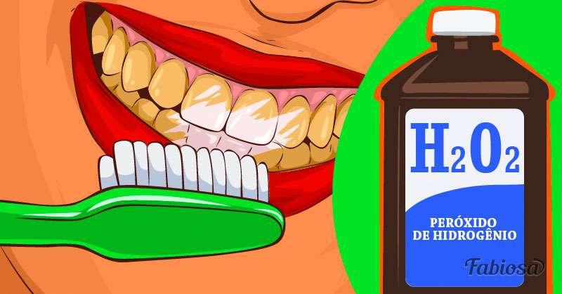 E Possivel Clarear Os Dentes Em Casa De Forma Eficaz E Segura No