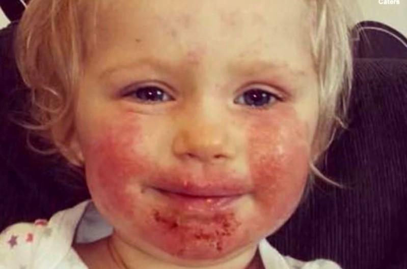 Su hija de 2 años estuvo enferma por meses sin que nadie supiera por qué y la causa dejó a todos atónitos