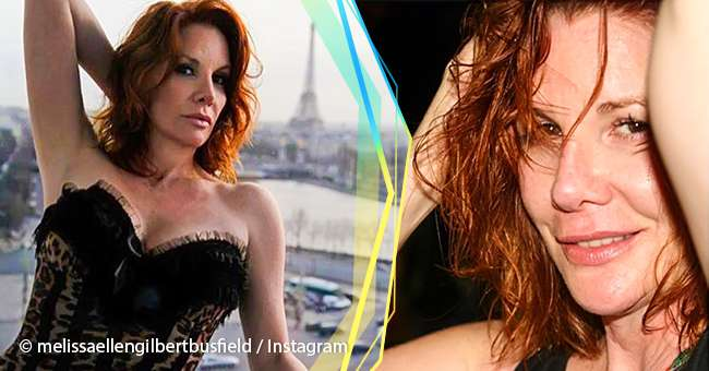 Why Melissa Gilbert Had Her Breast Implants Removed, And -3137