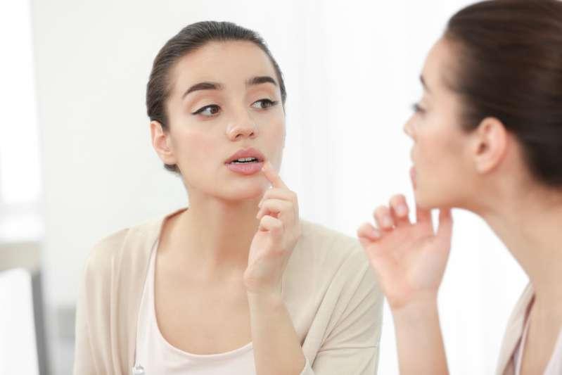 Что делать, если выскочила простуда на губахЧто делать, если выскочила простуда на губахcold sores herpes