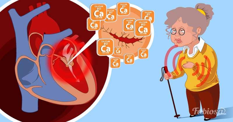 soplo cardiaco en niños pdf