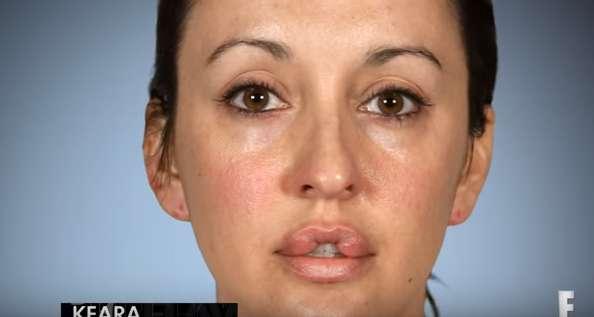 Elle cherche à avoir les lèvres d'Angelina Jolie pour rendre son ex jaloux et ne peut plus fermer la bouche