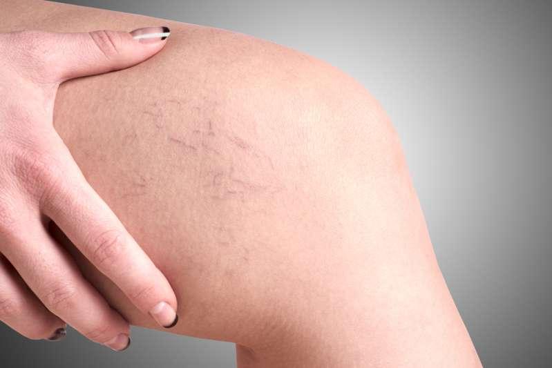 5 posizioni asana dello yoga che vi aiuteranno a sbarazzarvi delle vene varicose