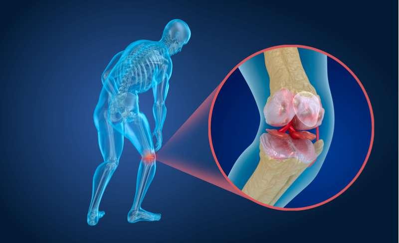 Souffre-t-on d'ostéoporose ? Voilà ce qu'il faut éviter pour avoir des os en bonne santé