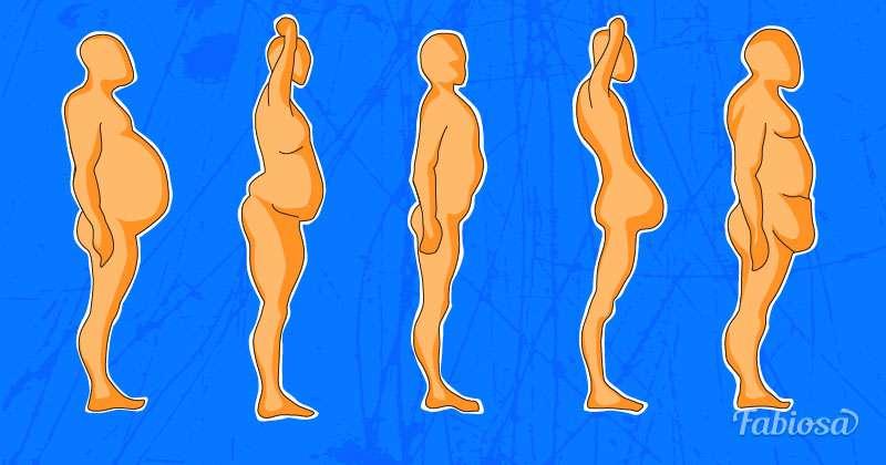 Типы распределения жира в организме, проблемные зоны, виды отложения жира