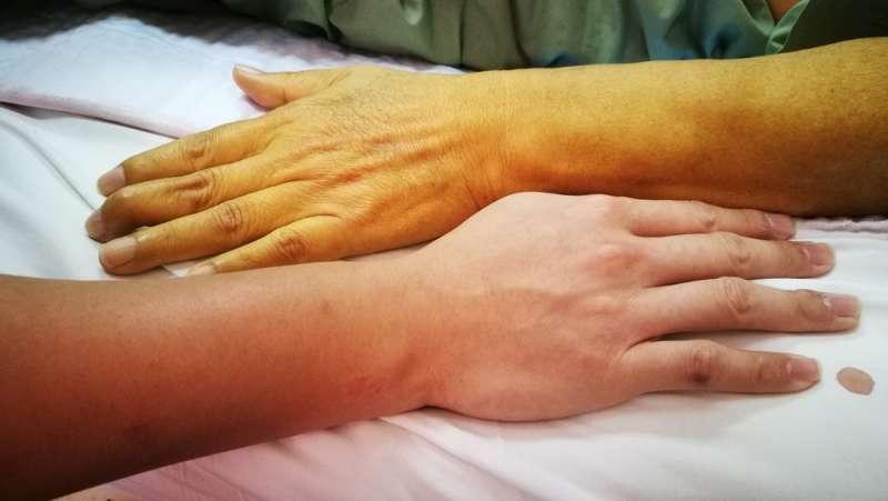 Soyez attentifs : le corps peut vous indiquer un problème de foie au travers de plusieurs symptômes