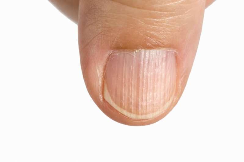 Donna pubblica una foto per mostrare in che modo Il tumore della pelle può nascondersi nel corpo senza che lo sappiamo