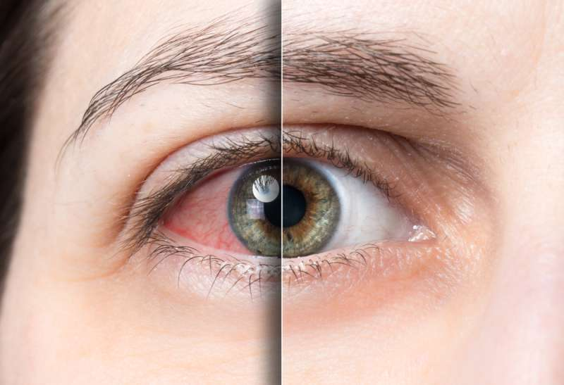 Silent Disease That Leads To Blindness. How To Recognize Glaucoma?