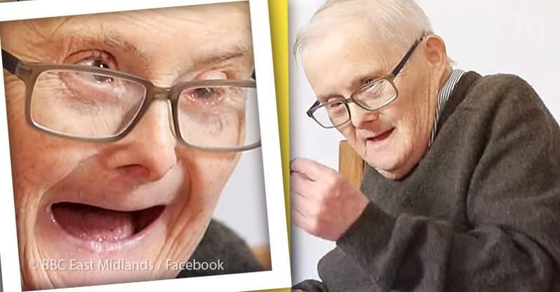Lebenserwartung Bei Down Syndrom