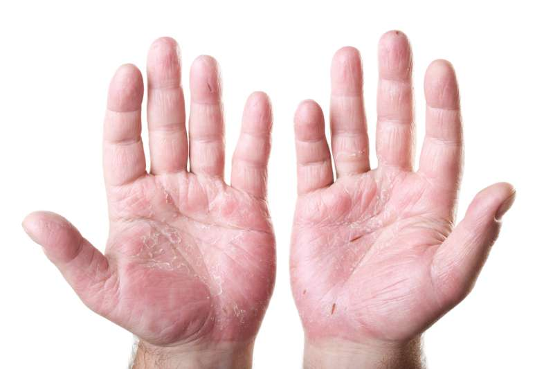 Health Problems Your Hands Can Revealhands health problems