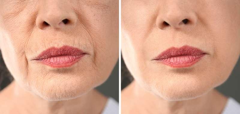 Ces 5 déséquilibres hormonaux accélèrent considérablement le processus de vieillissement