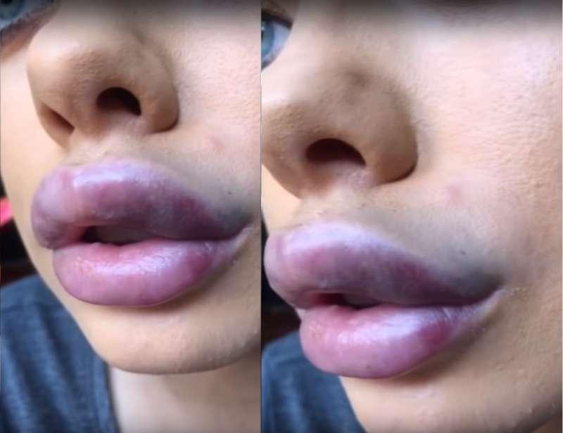 Se inyectó relleno para tener labios de ensueño, pero pronto todo se transformó en una pesadillaSe inyectó relleno para tener labios de ensueño, pero pronto todo se transformó en una pesadillaSe inyectó relleno para tener labios de ensueño, pero pronto todo se transformó en una pesadilla