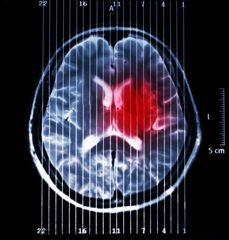 In What Cases Can A Headache Indicate Brain Tumors?