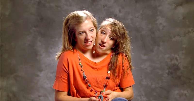 Ashley e Brittany siamesi gemelli dating