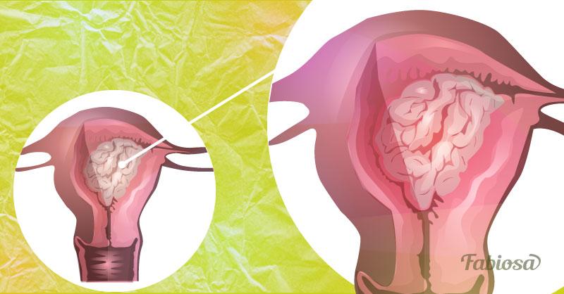 картинки рака эндометрия является вторым населению