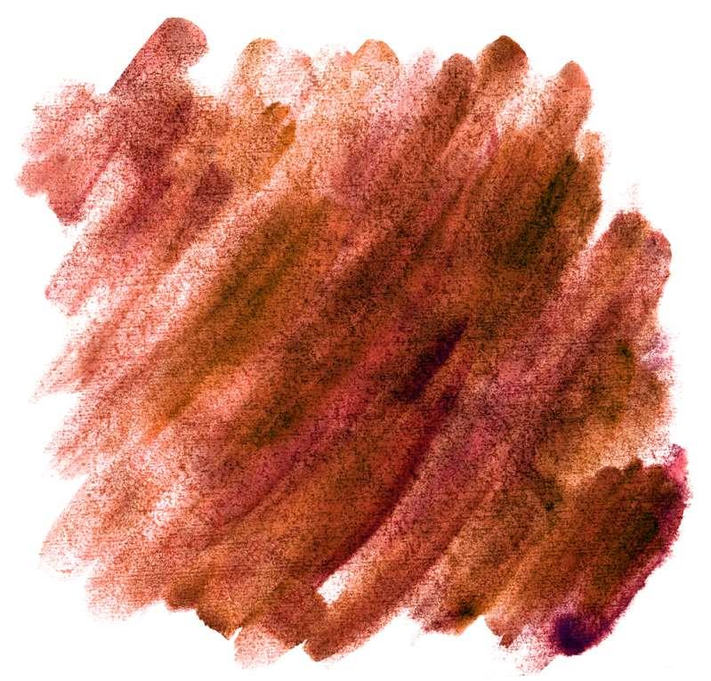 Pergunta ao ginecologista: o que significa a estranha secreção marrom fora do período menstrual?
