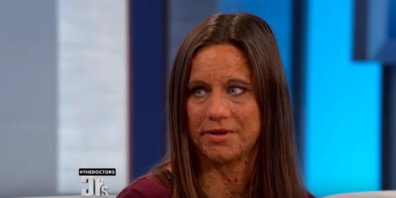 Женщина годами жила с болезненными опухолями на лице и по всему телу. Благодаря телепередаче она избавилась от них и преобразилась!