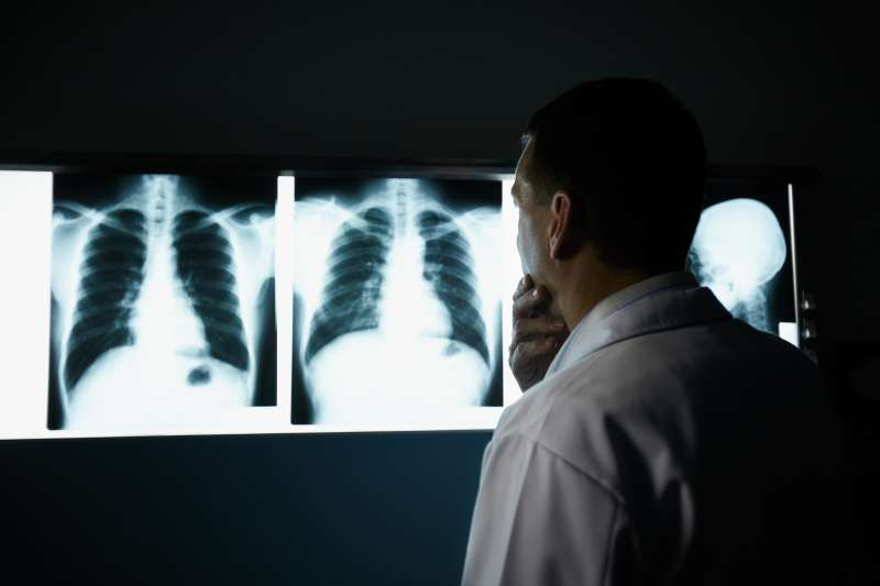 «Пивной живот» 47-летнего мужчины оказался 35-килограммовой опухолью