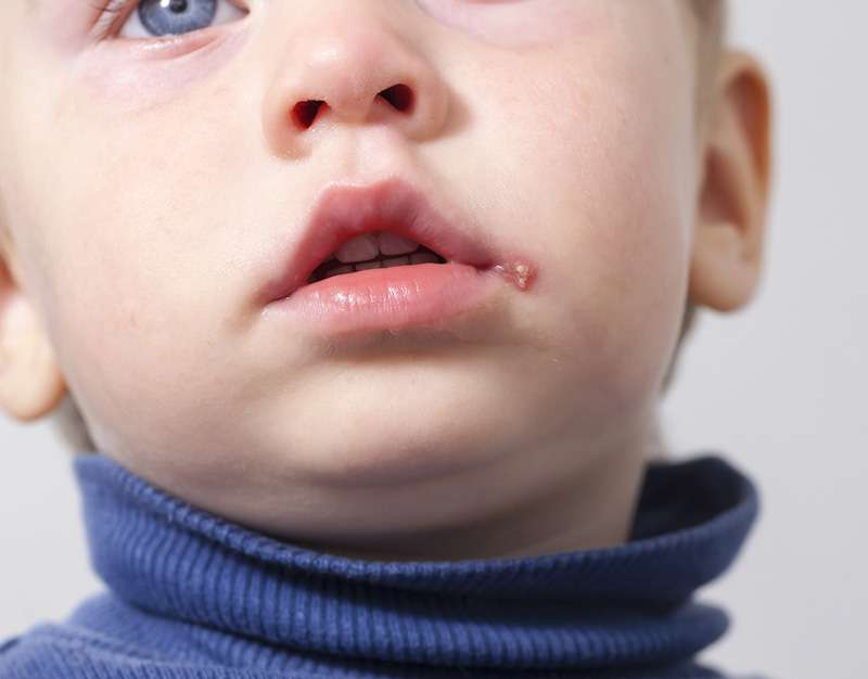 Parents Share Important Warning After Their 2-Year-Old Son Catches Herpes From A 'Harmless' KissParents Share Important Warning After Their 2-Year-Old Son Catches Herpes From A 'Harmless' KissParents Share Important Warning After Their 2-Year-Old Son Catches Herpes From A 'Harmless' Kiss