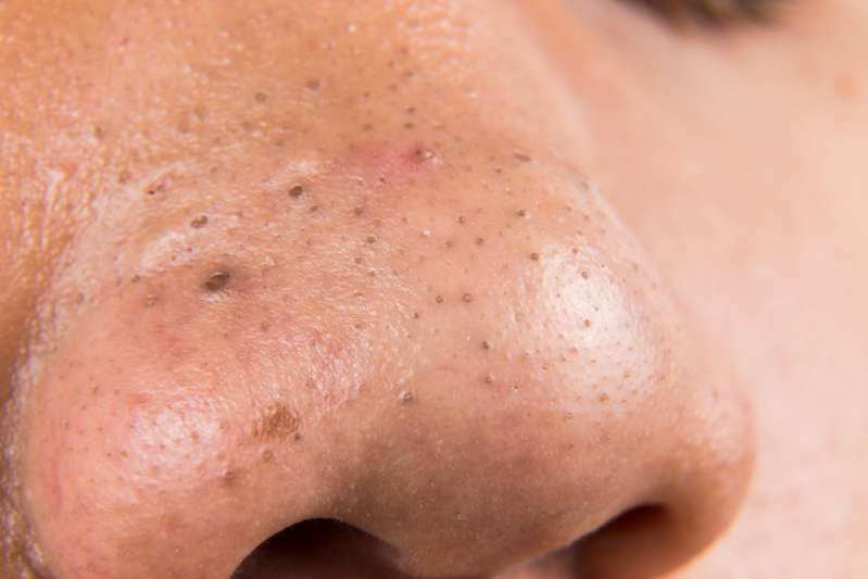 What Is Actually Hiding Inside Your Pimple?