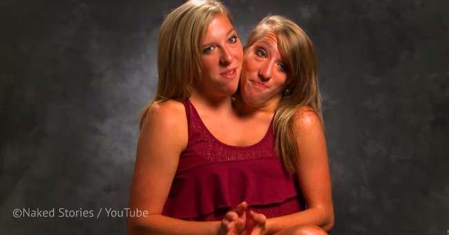 Les célèbres sœurs siamoises Abby et Brittany dévoilent ...
