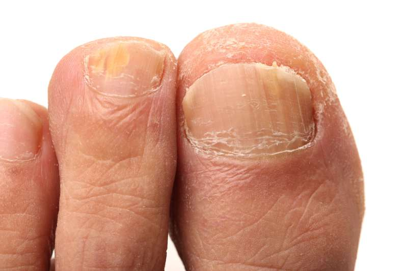 Thick And Yellow Toenails: Symptoms, Causes, As Well As Simple ...