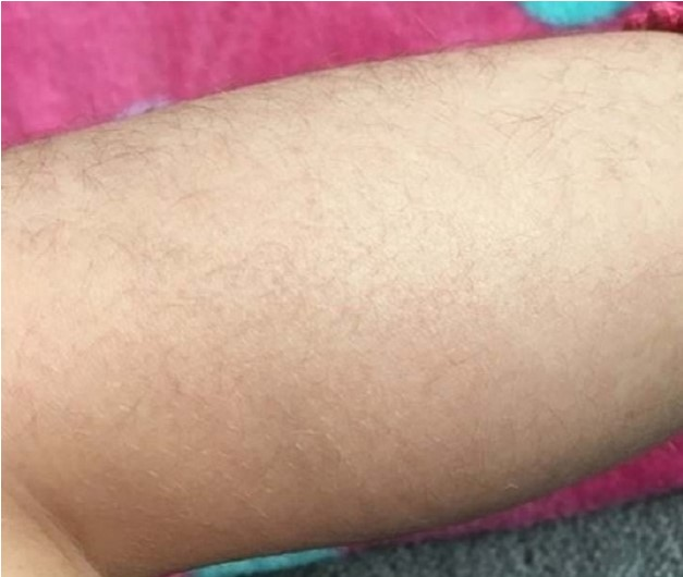 Mom Is Going To Allow Her 6-Year-Old Daughter To Remove Leg Hair. Isn't It Too Early?
