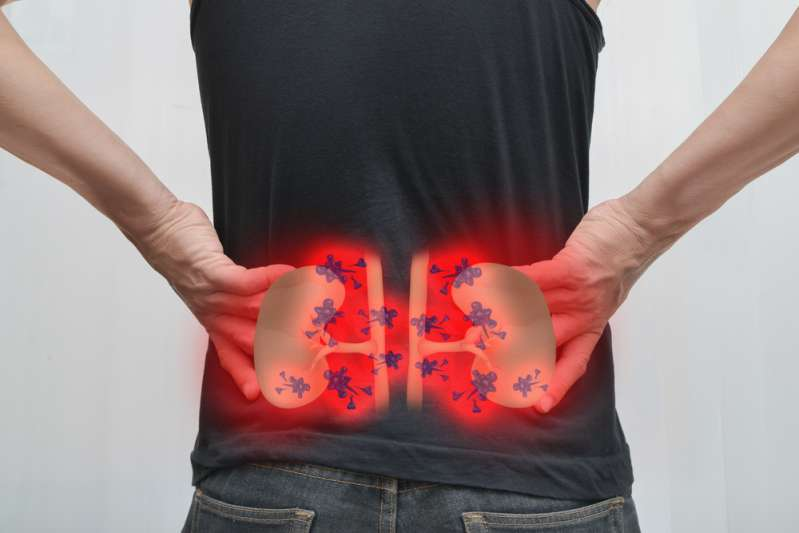 Kidneys In Distress: Hidden Symptoms Of Cancer That Few People Associate With Oncology