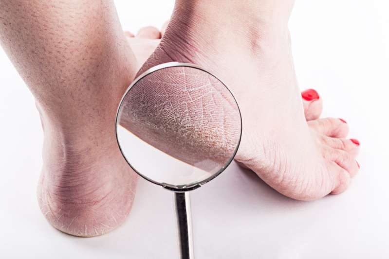 What Your Feet Say About Your Health And What Happens When You Ignore Them?cracked and dry heels